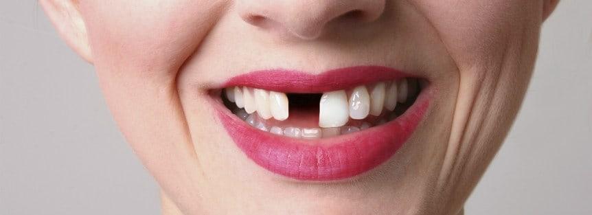 Missing Tooth repair