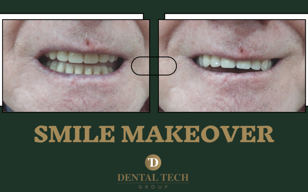 Smile Makeover With Dentures