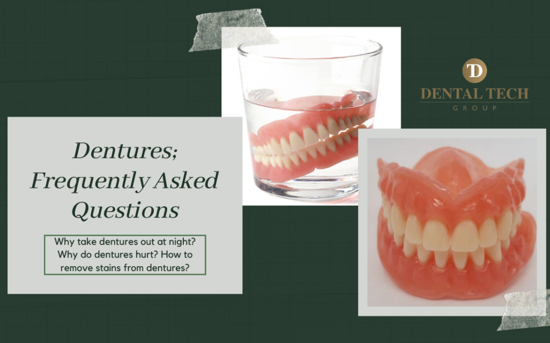 Dentures; Frequently Asked Questions