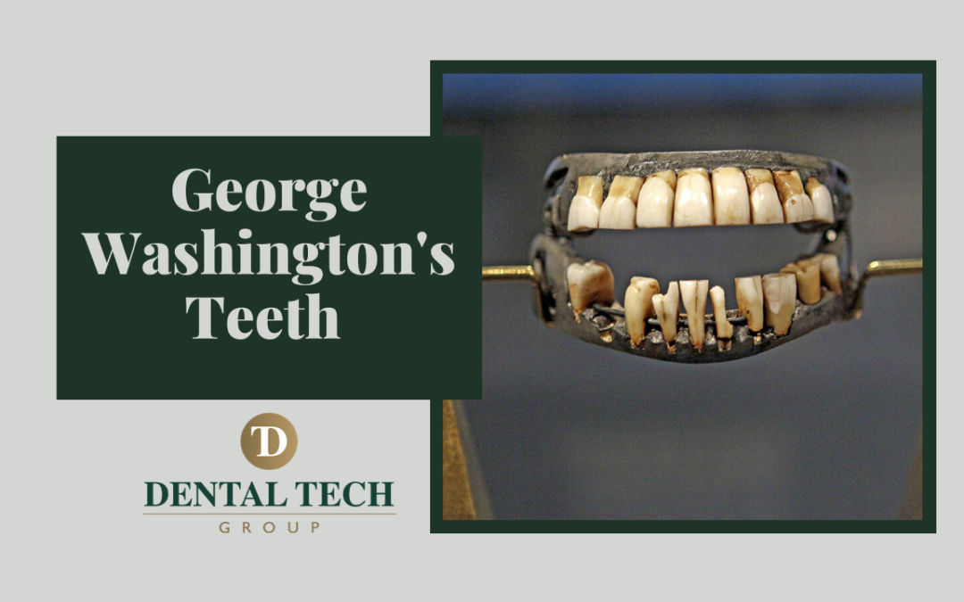 Imagine going from Washington DC to New York to have dentures repaired like George Washington