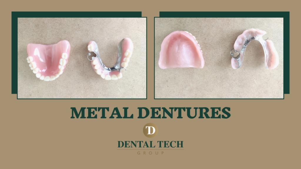 Metal Dentures