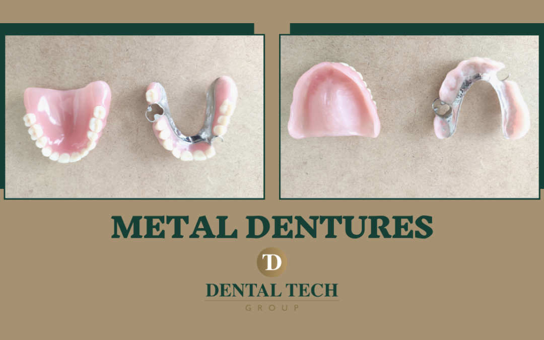All About Metal Dentures