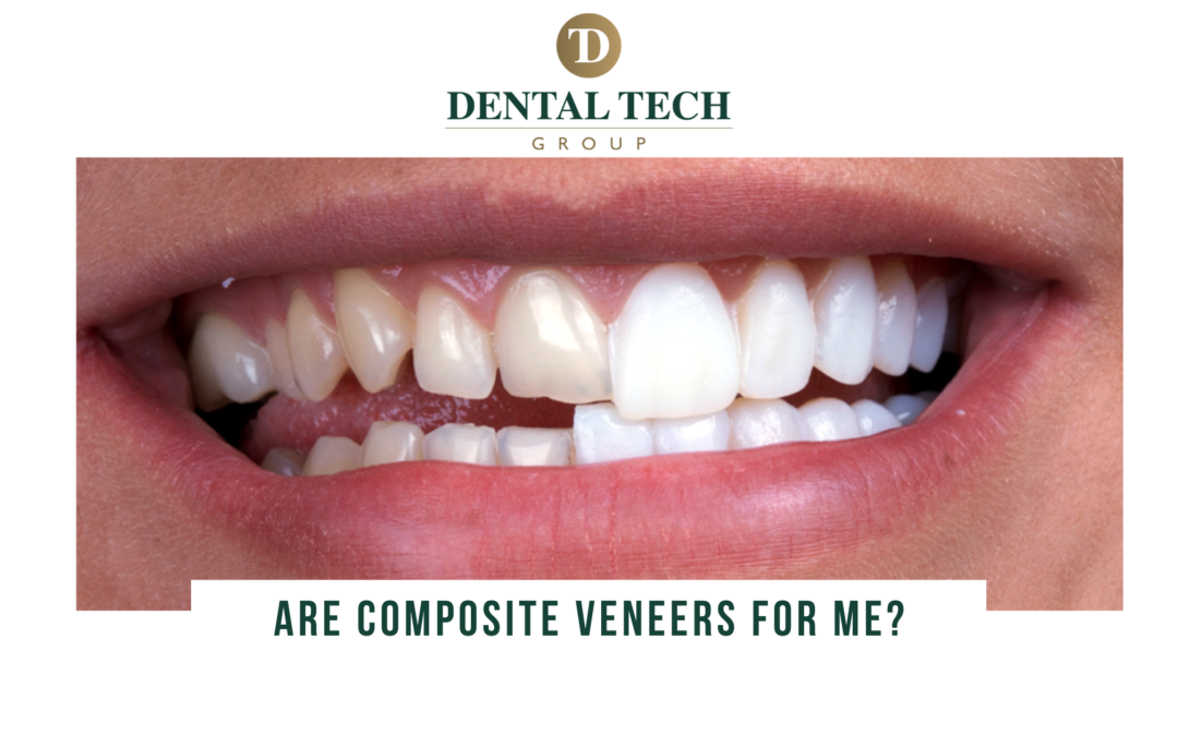 Are composite veneers for me?